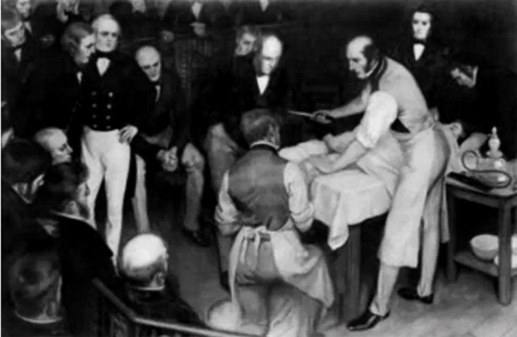 James Esdaile y la analgesia con hipnosis