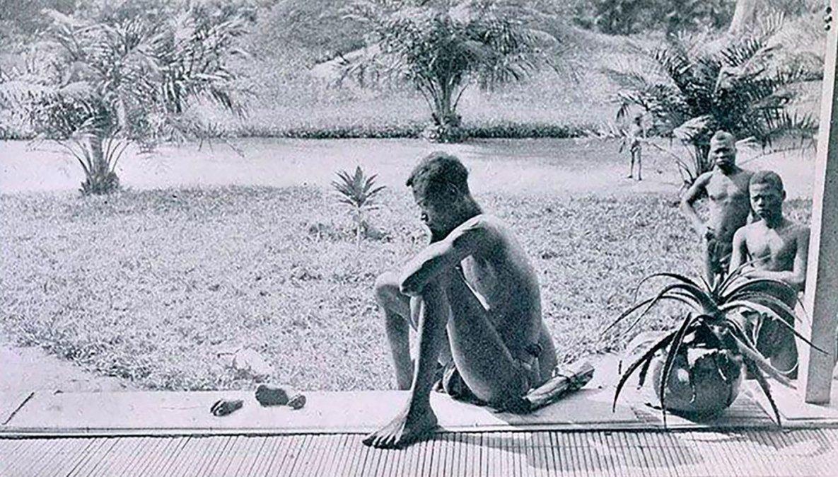 Un congoleñomira los restos demanos y pies amputados por soldados.