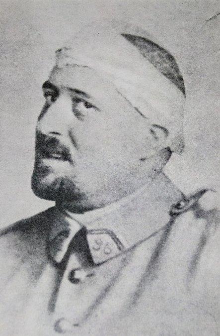 Apollinaire en la primavera de 1916 después de una herida de metralla en la sien.