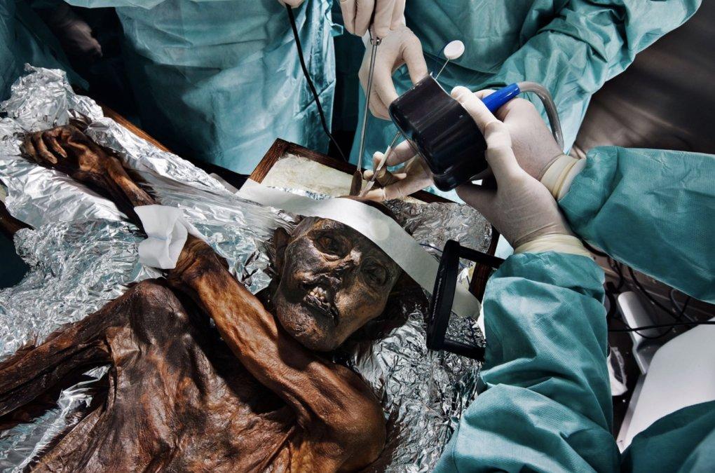 Los científicos estudian los restos de Ötzi.